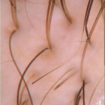 stop hair loss and regrow hair tricoscopy