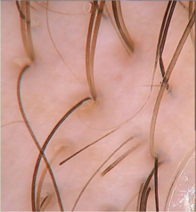 Treatment for DHT Hormone and Hair Loss